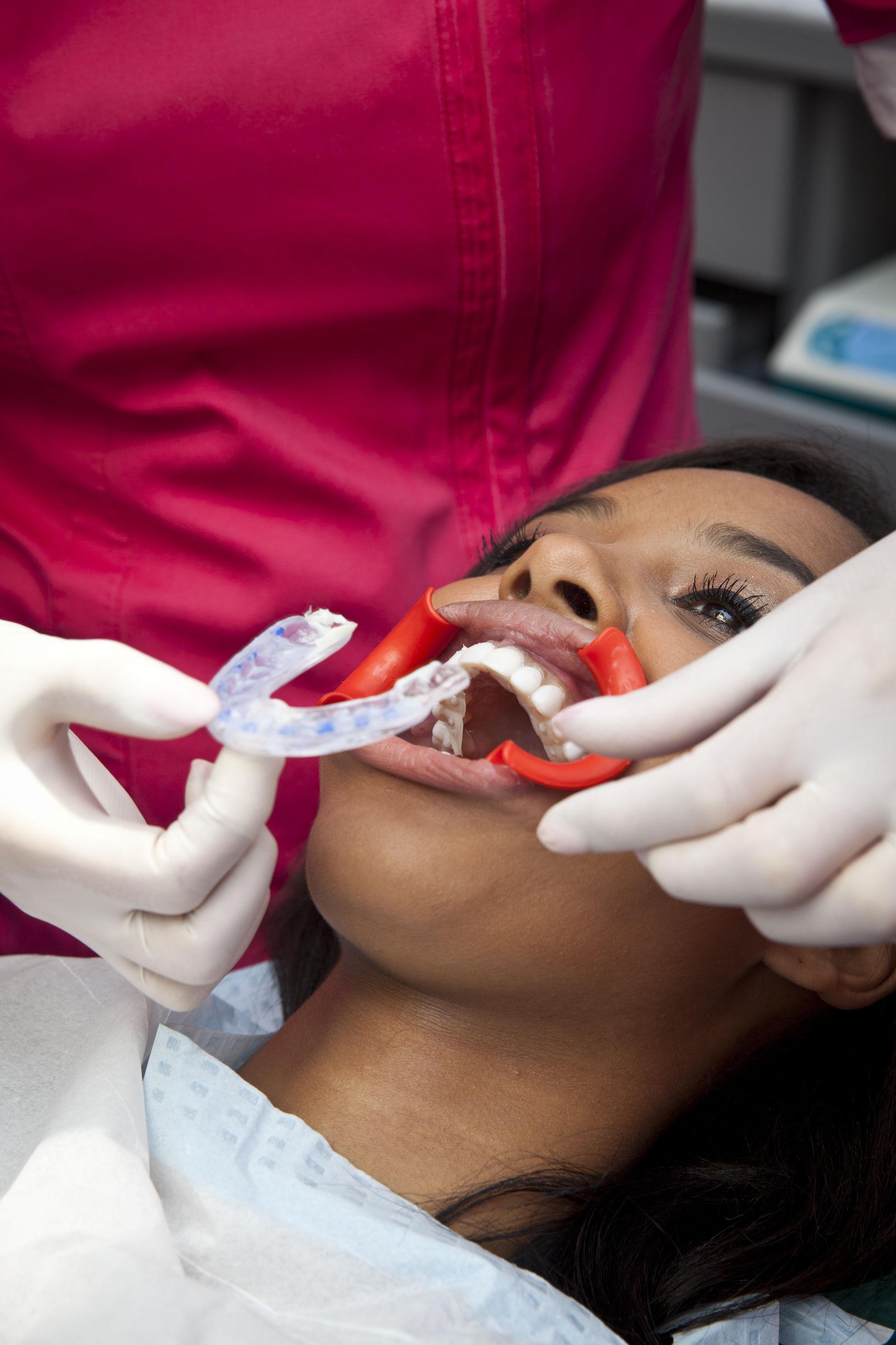 Nico correctie scheve tanden met facings