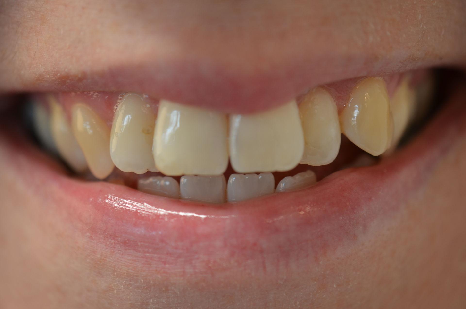 Rechte Tanden Zonder Beugel Het Kan Glamsmile