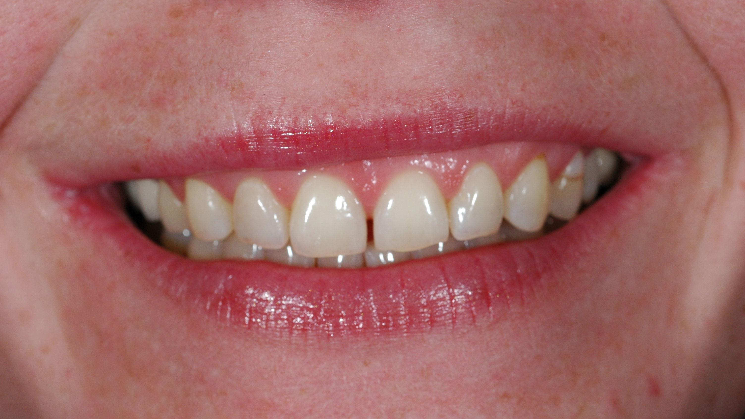 Davy voor veneers oplossing scheve tanden