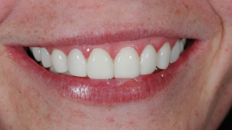 Davy met glamamsile veneers oplossing scheve tanden